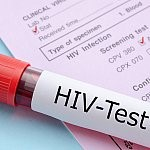 Less than a quarter of at-risk adolescent boys ever get tested for HIV